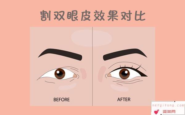 割双眼皮效果对比