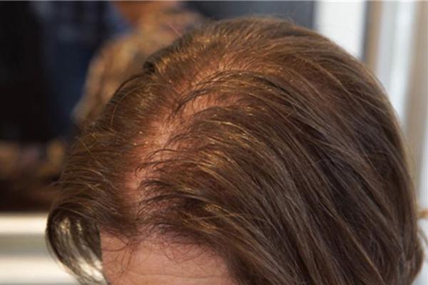 种植头发后怎么护理