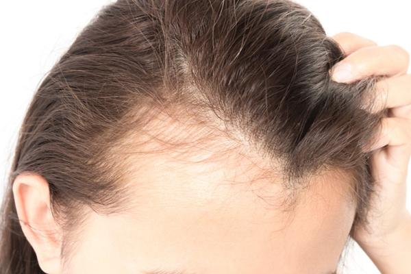 种头发真的是有效果吗