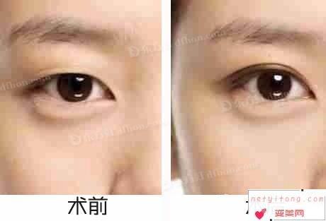 双眼皮效果对比