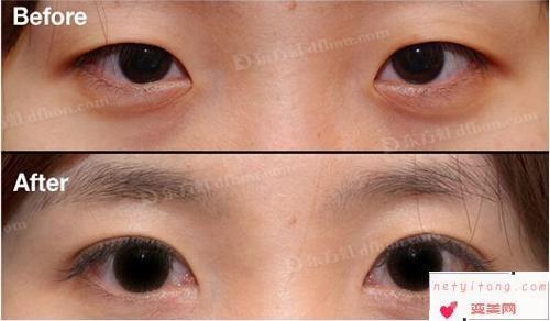 双眼皮对比