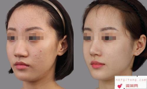 硅胶隆鼻效果好吗