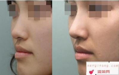 硅胶隆鼻效果对比