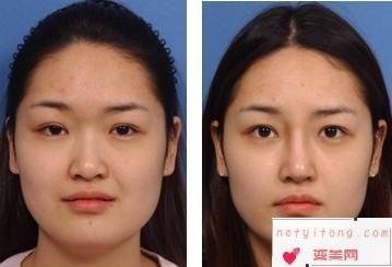 硅胶隆鼻术前后效果对比