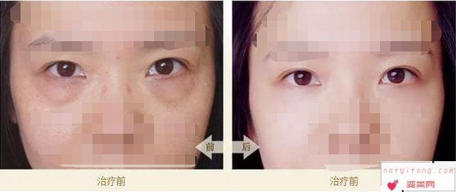 眼袋的形成原因和祛除方法