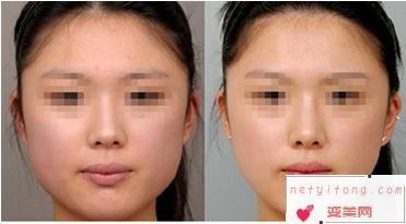 吸脂瘦脸和打瘦脸针,哪个更好?