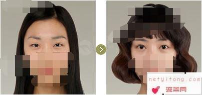 割双眼皮的优势和副作用