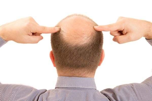发际线种植会产生副作用吗-和田市植发医院