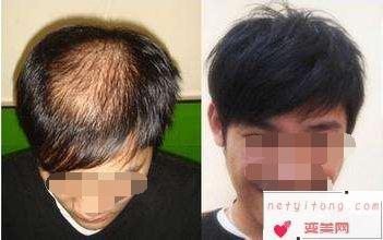 植发手术的要点和适应人群