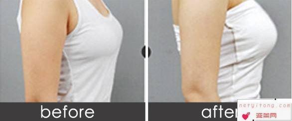 假体隆胸的优势和劣势