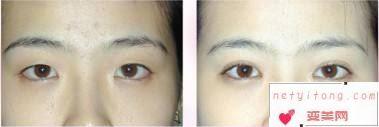 双眼皮手术不适合哪些人群?