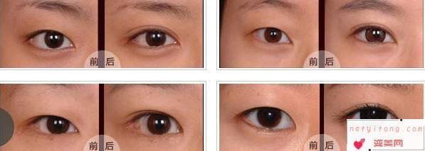 对于切开割双眼皮我们应该知道的有哪些?
