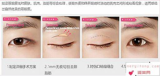 对于韩式双眼皮你了解多少
