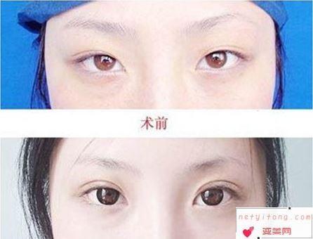 埋线式双眼皮你了解多少呢?术后多久可以恢复、可以维持多久?