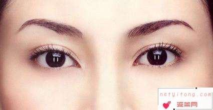 肿眼泡想要做双眼皮有哪些方法?肿眼泡做双眼皮好看吗?