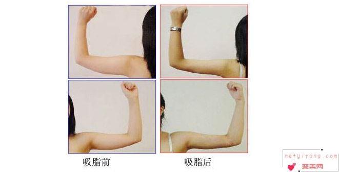 吸脂瘦手臂手术之后怎么做能快速消肿?