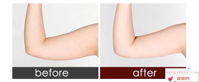 吸脂瘦手臂手术之前一定不能做这些事情