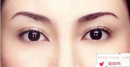 割双眼皮和埋线哪个好?
