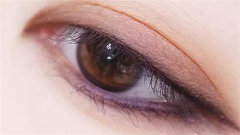 上海割双眼皮手术价格高吗?