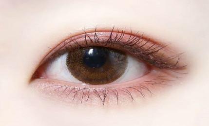 昆明哪家割双眼皮安全?