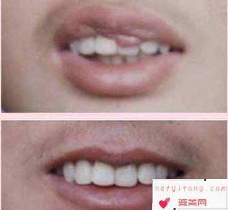 什么是重唇  西宁华美整形医院重唇整形会留疤痕吗