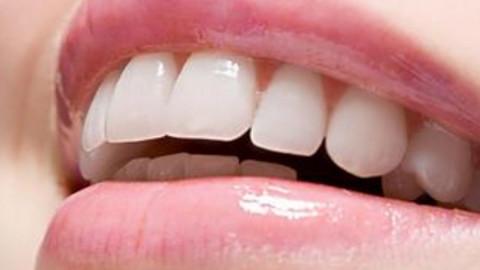 杭州种植牙修复费用贵吗?