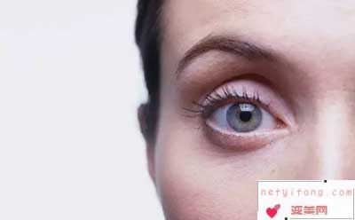 自体脂肪丰眼窝术前注意事项