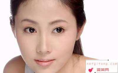 哪些情况是适合进行改脸型手术的呢?
