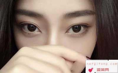 双眼皮的术后护理工作有哪些?