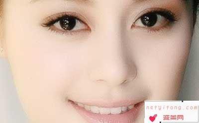 双眼皮的形状都有哪些