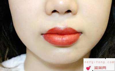 纹唇的操作过程是什么样的