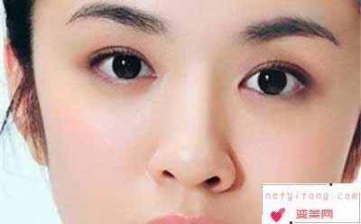 你适合做双眼皮手术吗?
