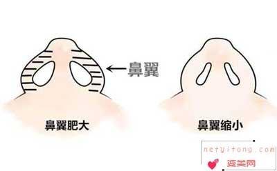 鼻翼缩小术你了解吗?