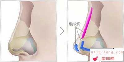 肋骨隆鼻术手术能维持多久吗?