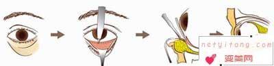 激光祛眼袋如何