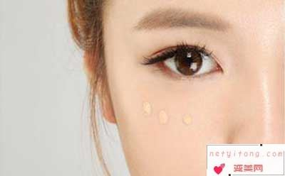激光祛眼袋术后的疗养
