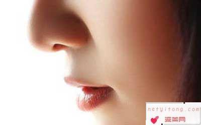 自体软骨隆鼻的优点有哪些?