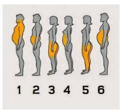 健健康康减肥,给大家讲中医埋线减肥、吸脂塑形、微晶塑智能溶脂
