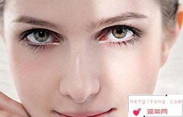 漳州医院整形美容科外切去眼袋会留疤吗 是否安全呢