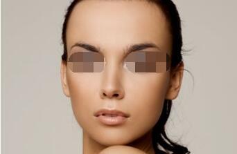 哪些人适合面部吸脂?面部吸脂什么时候可以恢复?