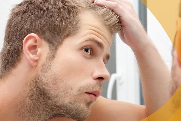 植发手术贵吗-重庆能植发