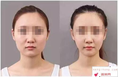 脸部自体脂肪填充的3个注意点