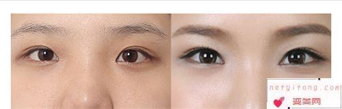内眦赘皮去除术和开外眼角术有些什么特征