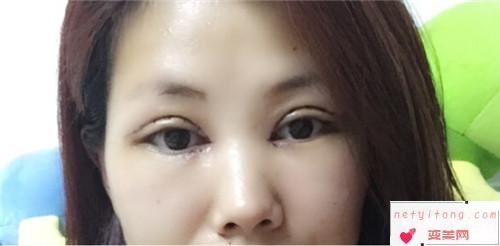 应该如何快点解决烦人的眼角纹