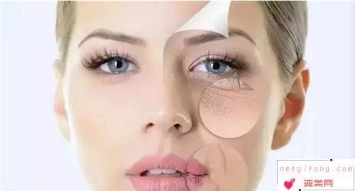 现在去除眼角细纹的方法有哪些