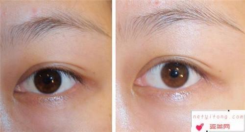 激光去除眼袋手术有哪些好处