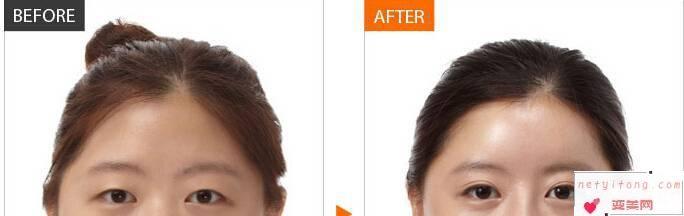 哪几类人群不可以做双眼皮整形美容手术