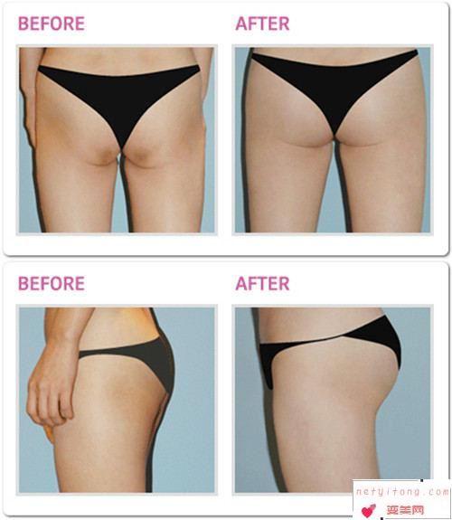 自体脂肪丰臀术能维持多久的时间
