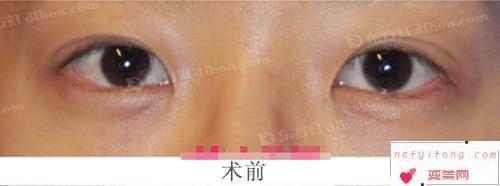 上睑下垂矫正手术后眼睛相对对称是成功的吗