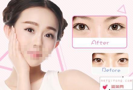 你知道哪9类人群不适合进行双眼皮修复整形手术吗